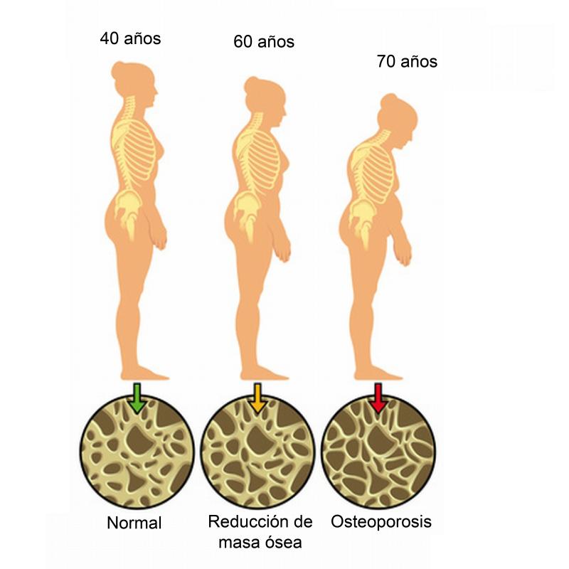 Osteoporosis en blog de fitness para mujeres con recetas fitness